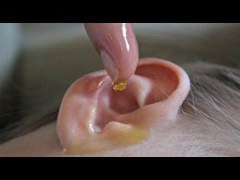 يا سبحان الله...ضع قطرتان من هذا في أذنيك سوف تعود للسمع 100 % حتى كبار العمر سينبهرون !