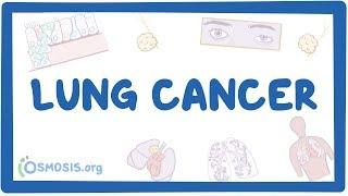 Lung cancer - causes, symptoms, diagnosis, treatment, pathology