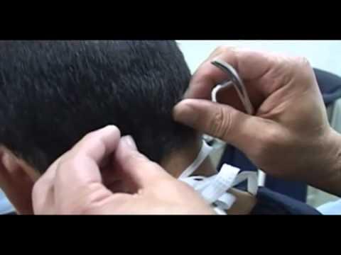 Soluciones para la calvicie, cirugía estética 1