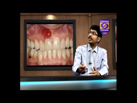 Aarogya Darshini :దంత సమస్యలు మరియు చికిత్స/Dental problems and treatment
