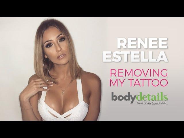 Laser Tattoo Removal Live Session | Renee Estella | Body Details