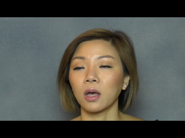 Correction of Silicone Nasal Augmentation Asian Rhinoplasty Testimonial