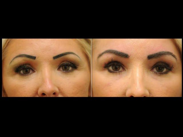 Female Eyebrow Hair Transplant Testimonial in Dallas, Texas