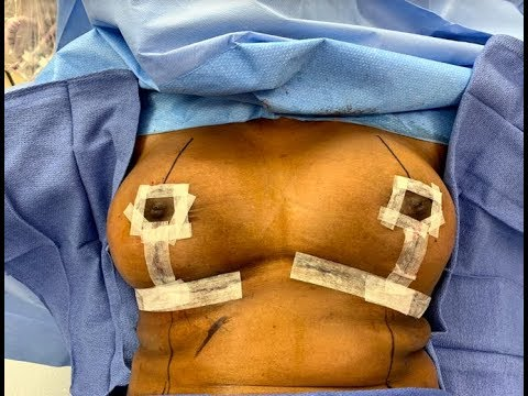 Performing Breast Reduction Surgery