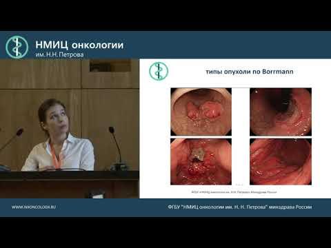 КТ исследование живота при опухоли желудка