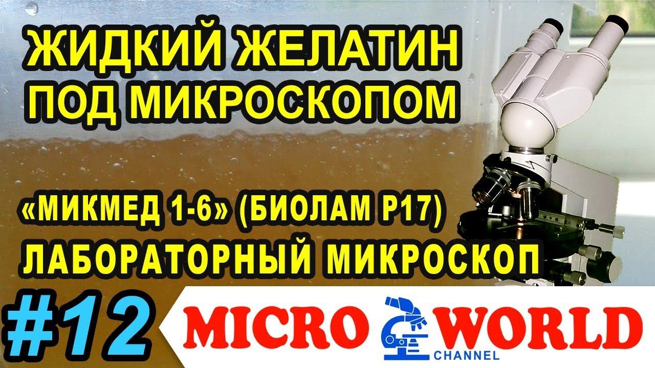 Старый желатиновый бульон под микроскопом - MICRO WORLD #12