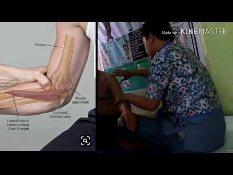 Video Pengobatan Syaraf Kejepit Jakarta