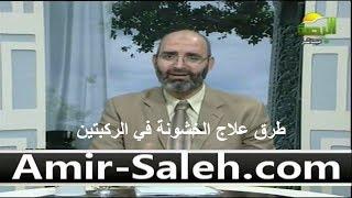 طرق علاج خشونة في الركبتين | الدكتور أمير صالح