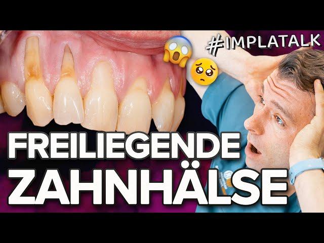 Was tun gegen Freiliegende Zahnhälse - Putztechnik, Zahnbürste und Co