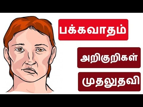 How to Prevent Stroke - Causes, Symptoms and Treatment Options | பக்கவாதம்  Tamil Health Tips