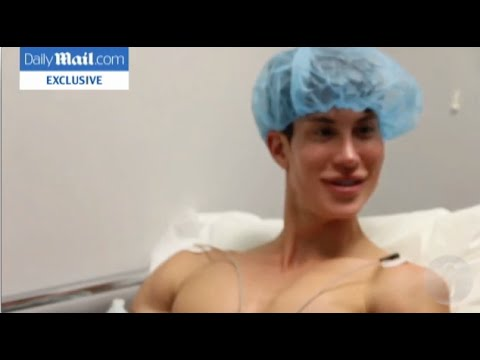 Justin Jedlica forehead veins stripped + back implants plastic surgery