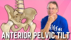 Anterior Pelvic Tilt? Do You Have It?  How to Fix? A  BIG SURPRISE!