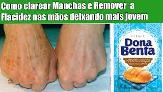 Como Clarear Manchas e Remover Flacidez Nas Mãos Deixando Lisinha e Mais Jovem