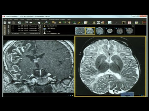 Neuro Imaging Board and Recredentialing Review 9 thumbnail