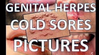 Genital Herpes Cold Sores Pictures