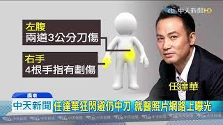 20190721中天新聞 任達華廣東遇襲被捅刀 嫌罹妄想症犯案