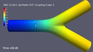 [Ca2+] Waves in Smooth Muscle Cells: Coupling Case 2