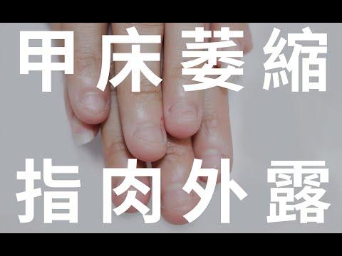 咬甲矯正-甲床萎縮 指緣硬繭的案例