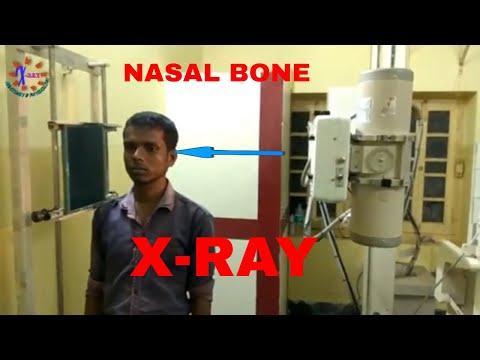 NASAL BONE X-RAY, ANATOMY AND PHYSIOLOGY PART - 80