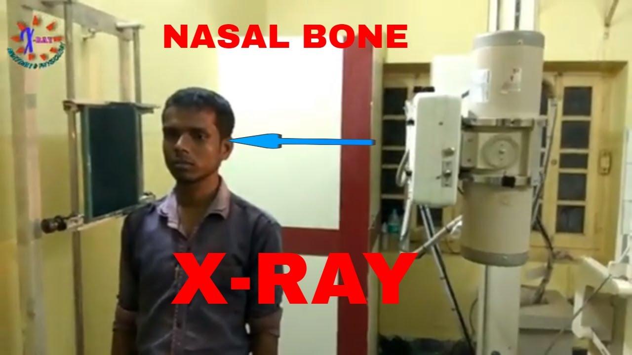 NASAL BONE X-RAY, ANATOMY AND PHYSIOLOGY PART - 80 - YouTube