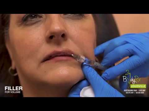 Lip Augmentation | Lip fillers | BodyRx Louisville