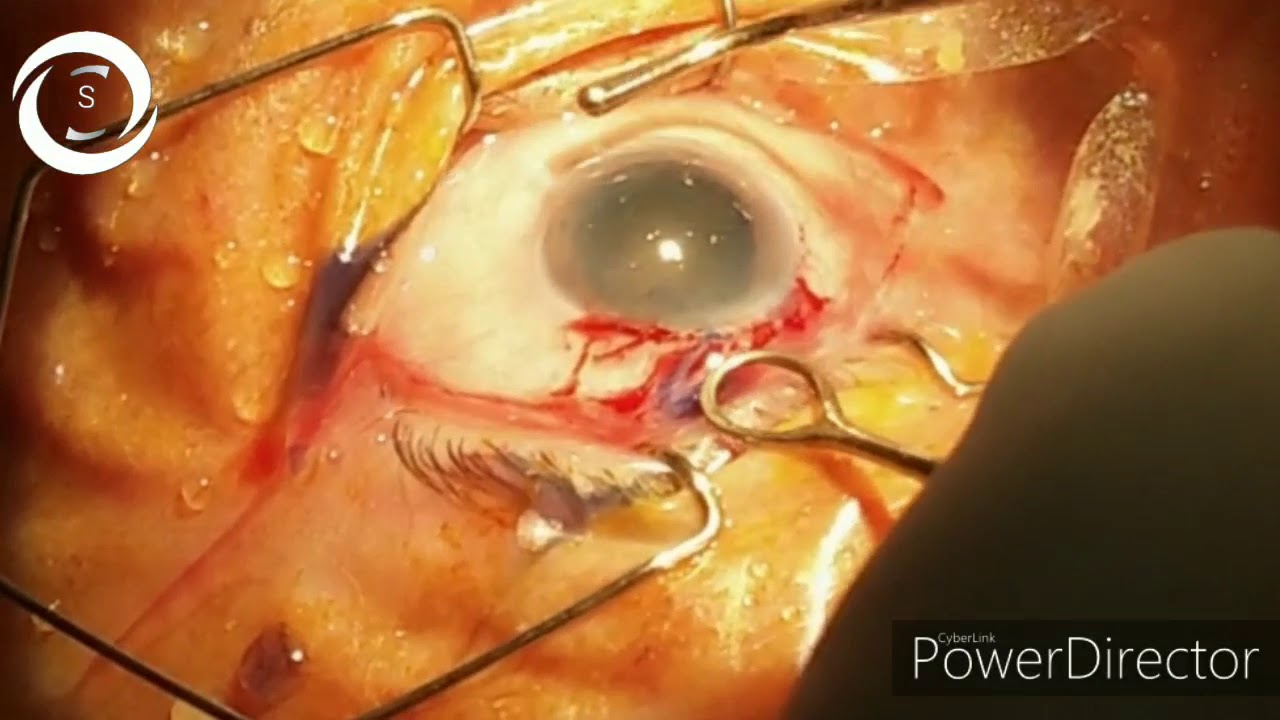 Download Conventional ECCE cataract surgery