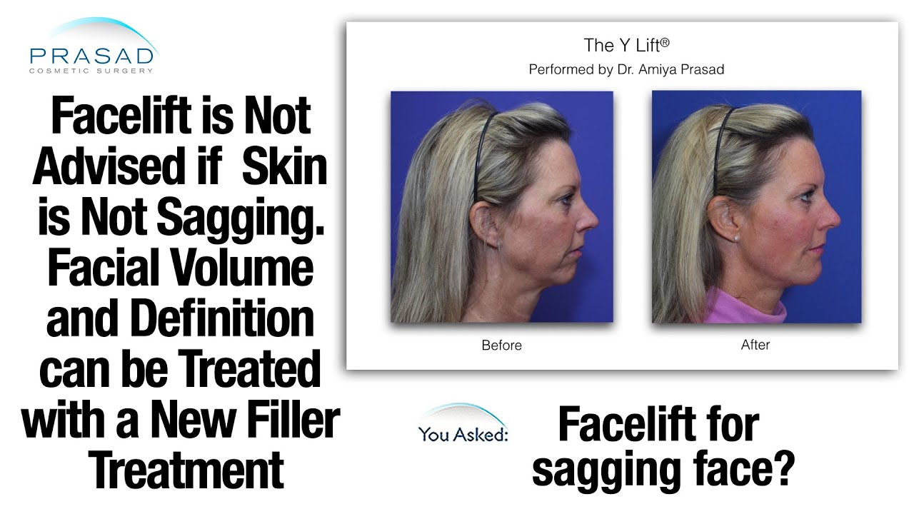 Marvelous Aging Affects Volume And Facial Definition Sooner Than Sagging Skin    Non Surgical Treatment