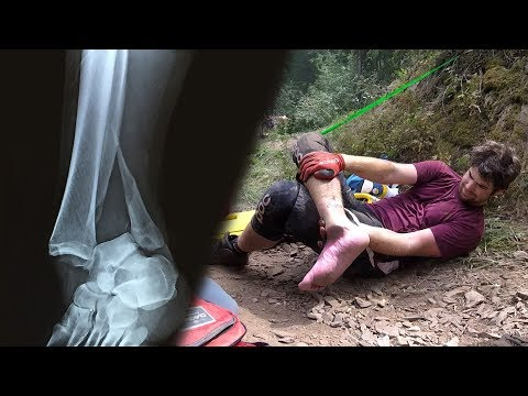 Broke My Ankle Downhill Mountain Biking (Graphic)