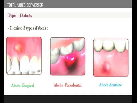 abc�s dentaire halitose mauvaise haleine