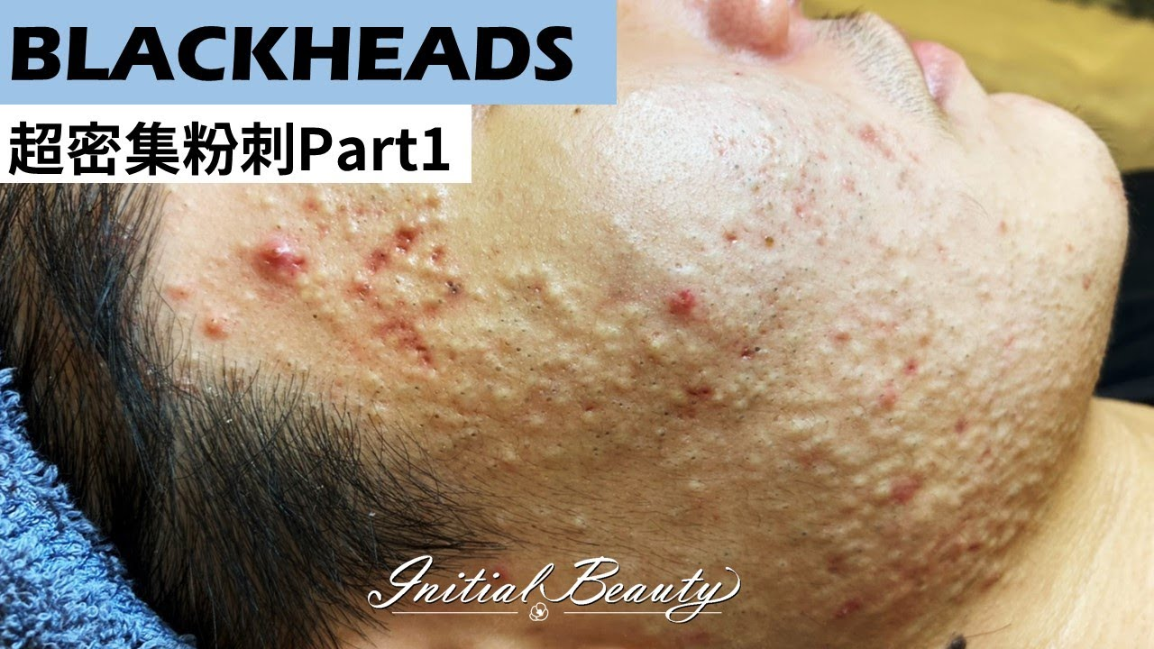 超密集粉刺part1( blackheads ) - Taiwan Tainan台南清粉刺最乾淨