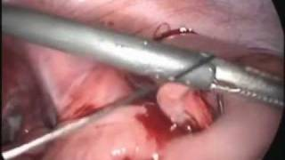 My Appendix Being Removed
