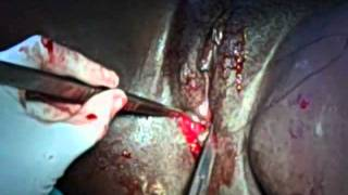 Episiotomy  Repair: Suturing of the muscle layer