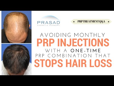 PRP Hair Loss Treatment is Done Monthly, but a PRP Combination Treatment is Only Done Once