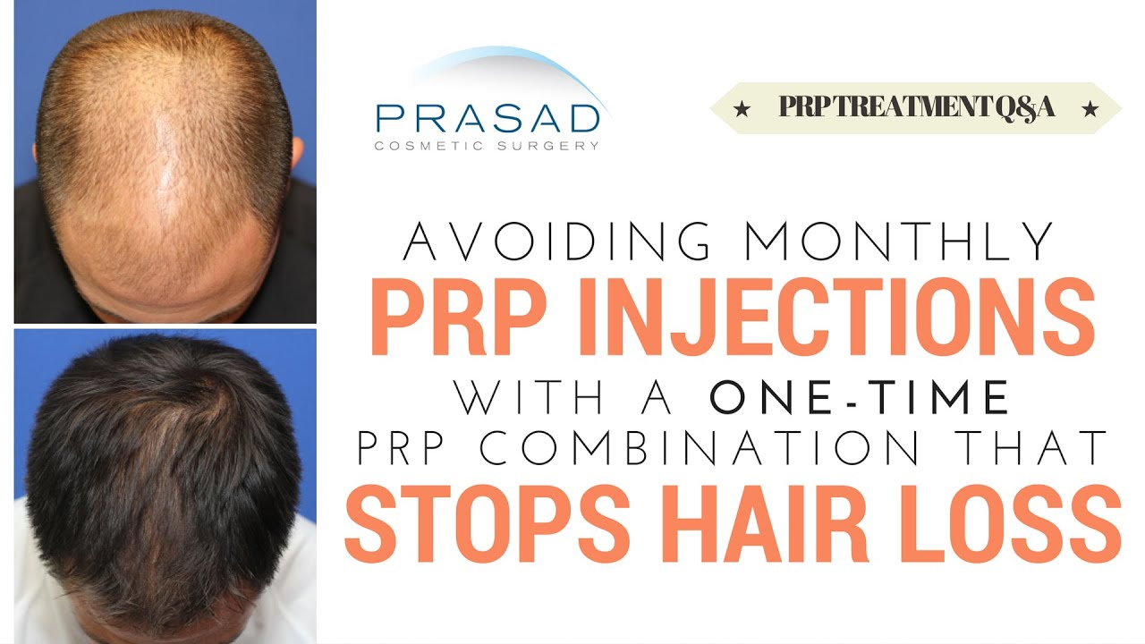 Dutasteride uk hair loss.doc - Prp Hair Loss Treatment Is Done Monthly But A Prp Combination Treatment Is Only Done Once Youtube