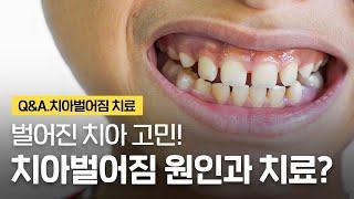앞니벌어짐 벌어진 치아의 원인과 치료방법(교정, 레진,…