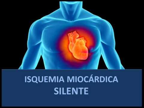isquemia+silente+del+miocardio