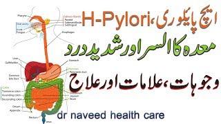 h pylori treatment in urdu | maida ka alsar | ایچ پائیلوری کی وجوہات ،علامات اور علاج