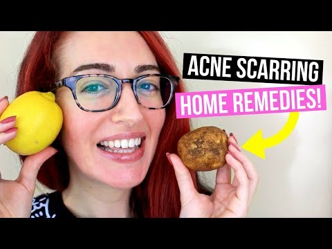 NATURALLY Remove Acne Scars At Home! My TOP 3 Acne Scarring Treatments