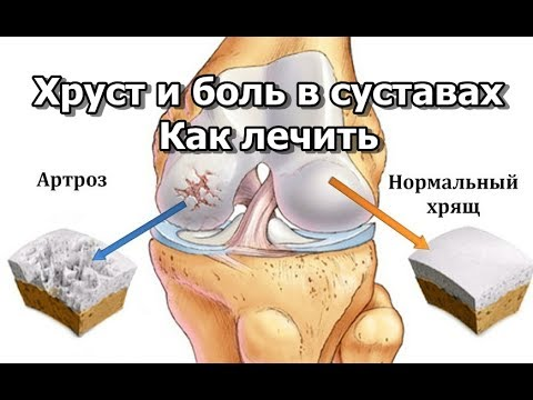 Коленный сустав болит и хрустит при сгибании разгибании