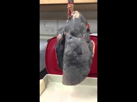 Blowing up human lungs (smoker's lungs) AP 120 - YouTube