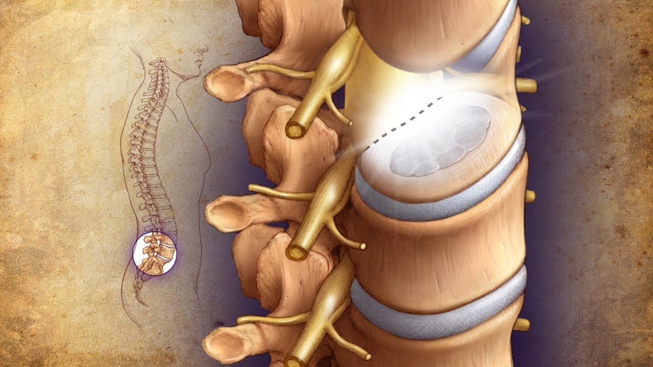 Mayo Clinic Minute: Minimally invasive surgery solutions for bad backs