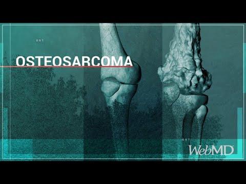 Basics: Osteosarcoma | WebMD