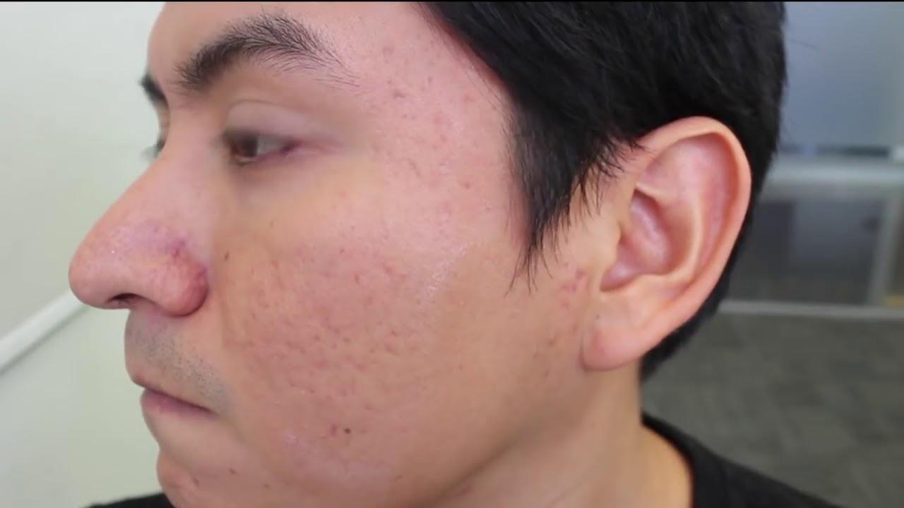 Como eliminar los huecos del acne de forma natural