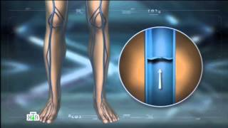 НТВ Наука и техника о лечении варикоза и Варифорте компании Здоров
