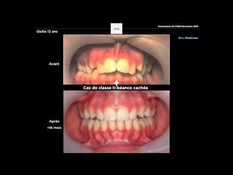 Dr Rodrigue MATHIEU_Méthode OSB_1° Webinaire Fév2016_English subtitles_Canada/Québec-Montréal