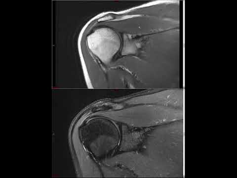 Shoulder MRI (Approach to MSK MRI Series)