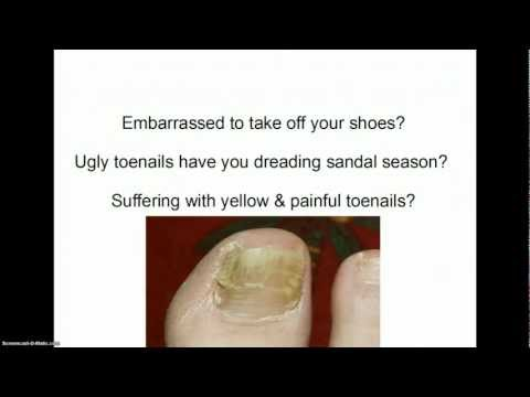 Toenail fungus treatment- How to get rid of toenail fungus!