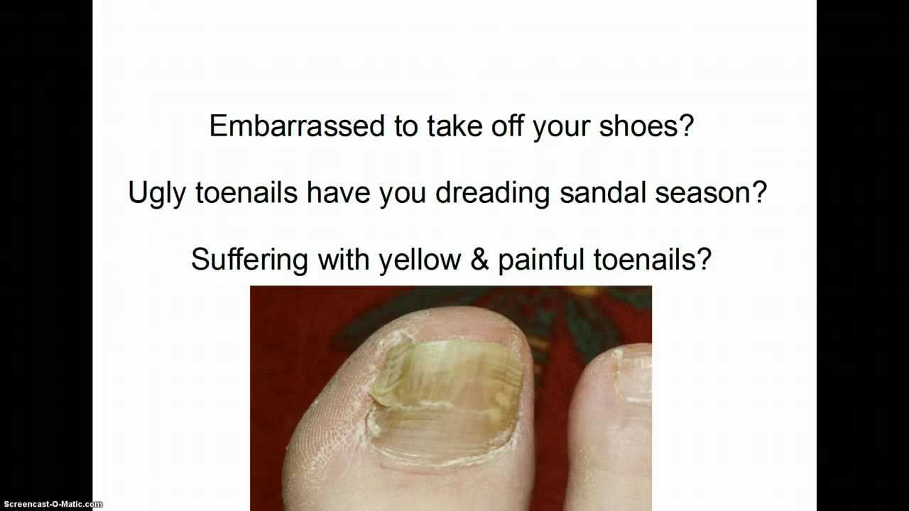 Toenail fungus treatment- How to get rid of toenail fungus! - YouTube