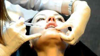 Хиалуронови филъри за устни в клиника Skin Line(Д-р Милена Генчева за хиалуроновите филъри в клиника за лазерна и естетична дерматология Skin Line. Повече инфо..., 2015-01-24T11:05:17.000Z)