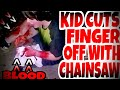 KID CUTS HIS FINGER OFF WITH CHAINSAW PRANK!!!